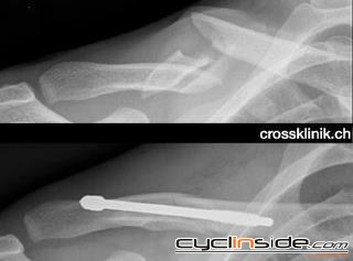 [IMG]http://www.cyclinside.com/upload/Category_3/Sector_21/Holder_4640/Content_3105/cancellara_clavicola.JPG[/IMG]